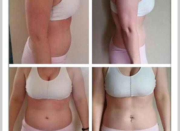 Amanda K. Before & After